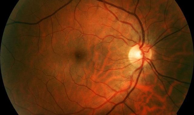 So funktioniert der Sehnerv des Auges