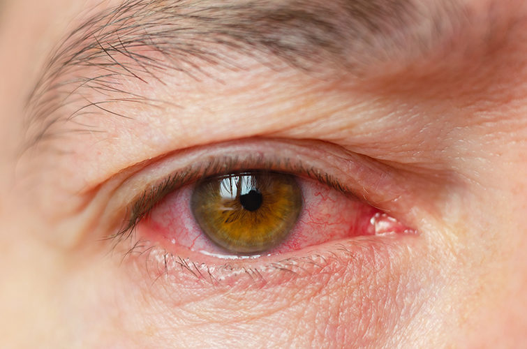 Hornhautentzündung: Ursachen, Symptome, Behandlung